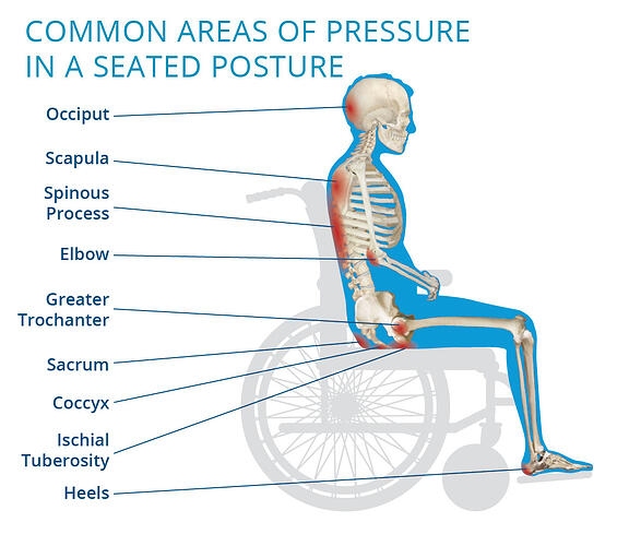 Common areas of pressure in a seated posture