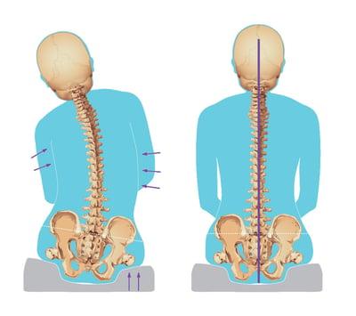 Reducible Posture