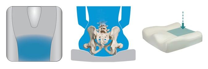 Posterior_Pelvic_Well_wheelchair_cushion