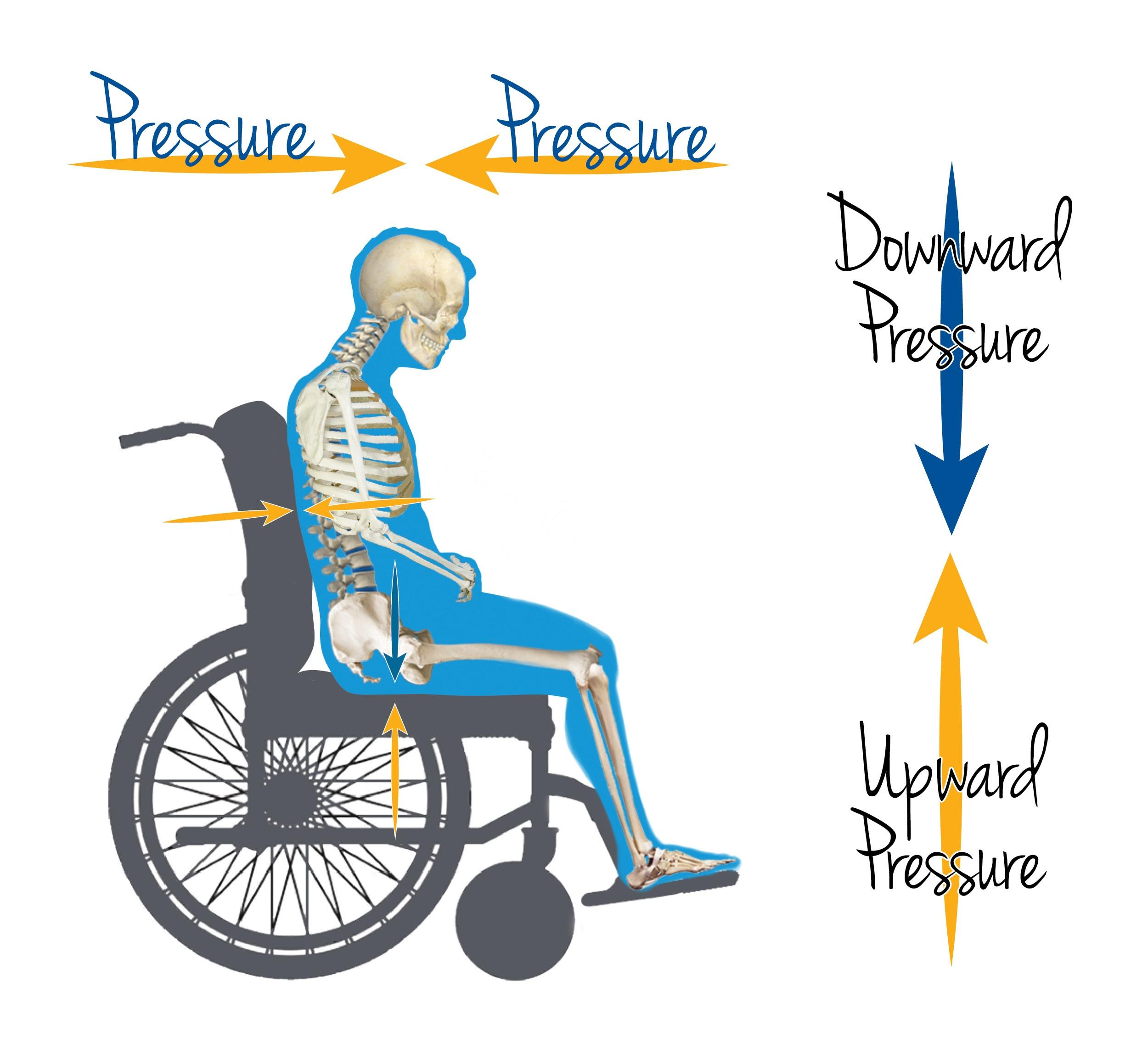 Wheelchair-Pressure-Injury-Points