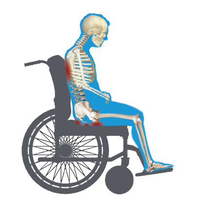Seated-Wheelchair-Peak-Pressures-points