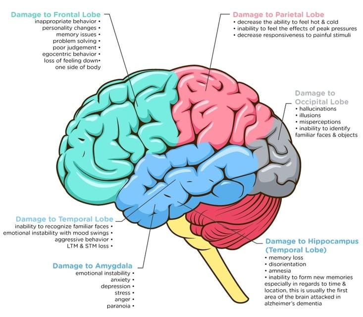 Brain-Damage-3.jpg