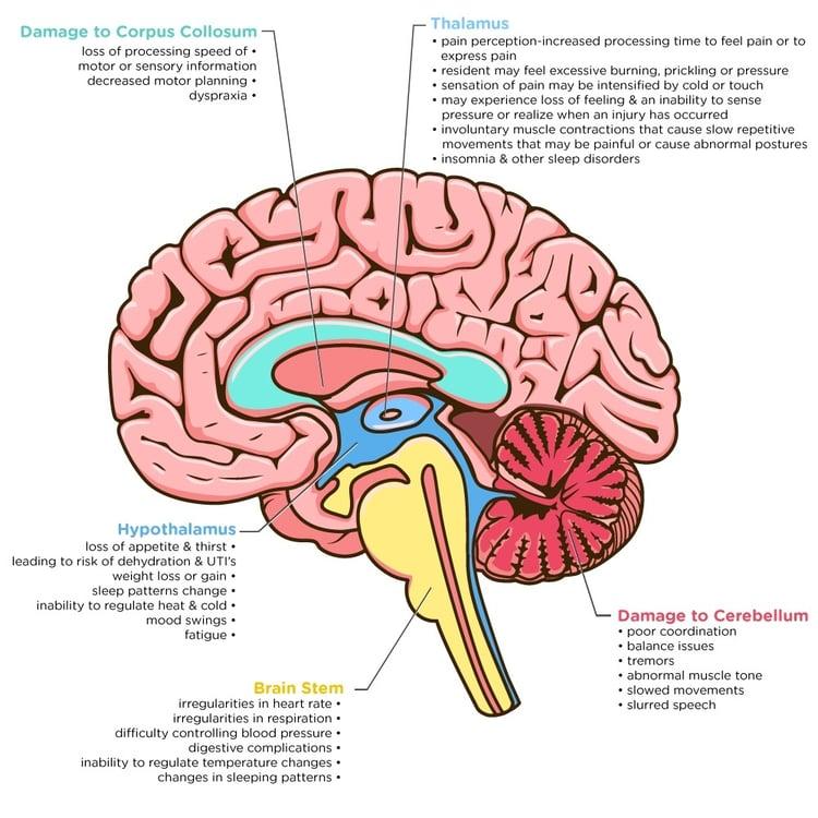 Brain-Damage-4.jpg