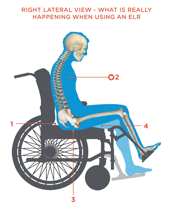 What_really_happens_when_using_Elevating_leg_rests.png