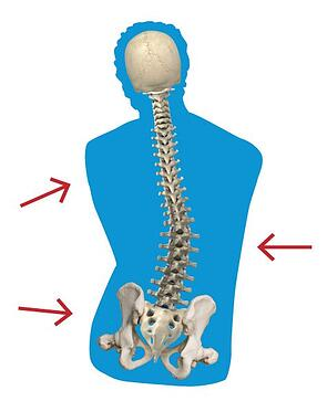 Flexible-Scoliosis.jpg