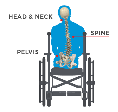 Pelvic-Obliquity_WhatHappens.png
