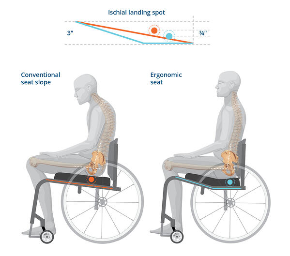 K0005 Ergo vs Conventional Seat Slope