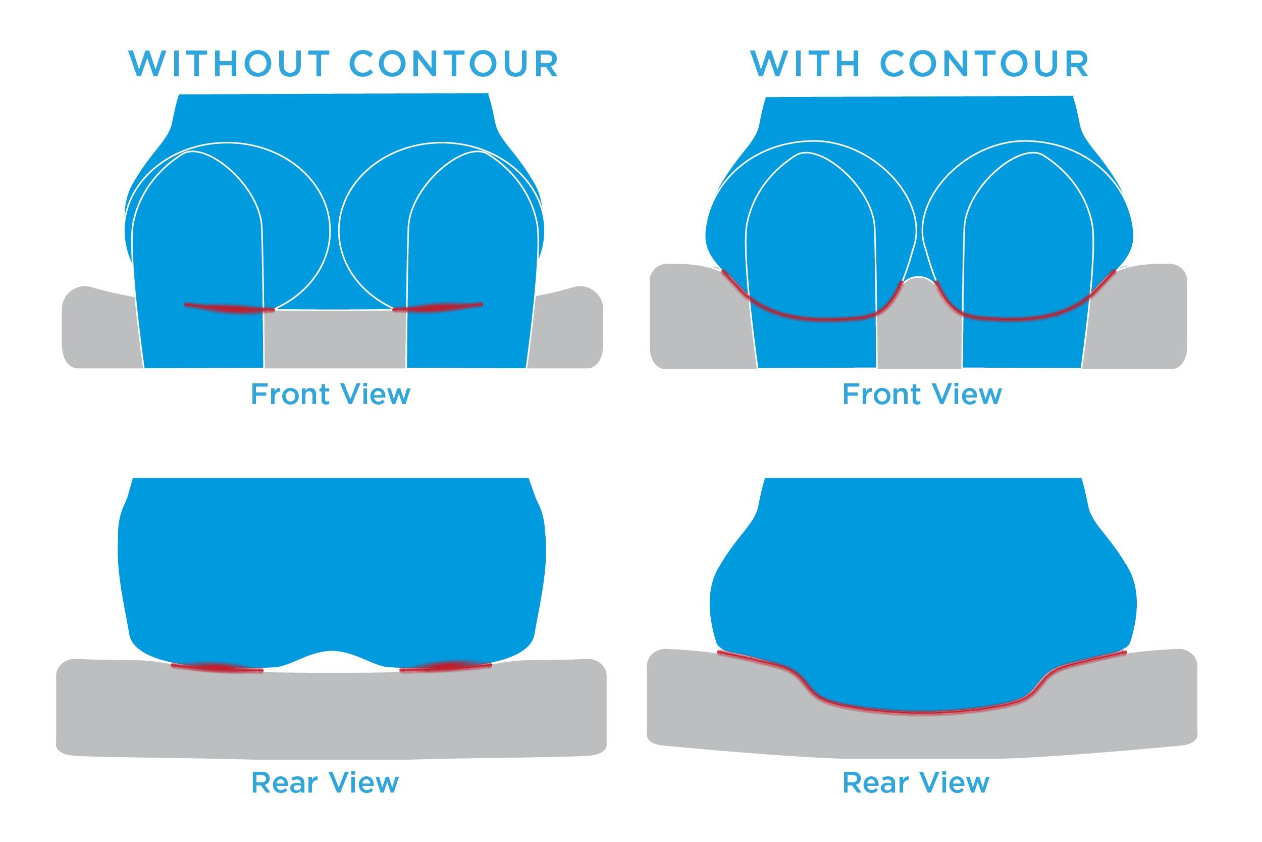 Contoured Surface Area Contact