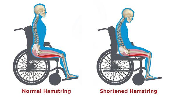 Hamstring Illustration
