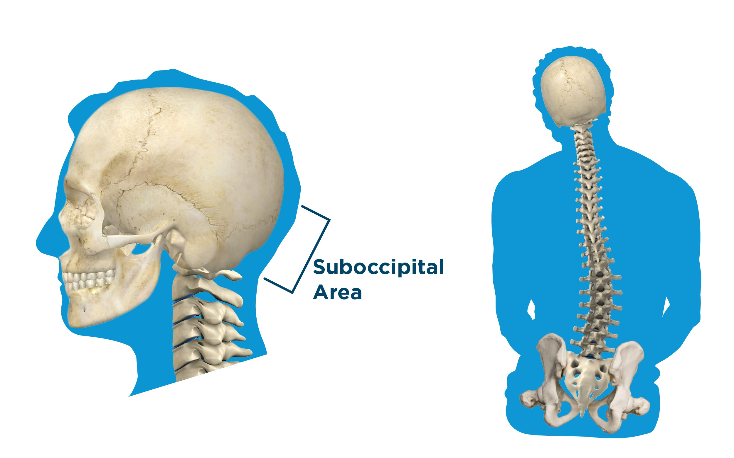 Wheelchair_HeadSupport_Measuring_Guide - Head Support