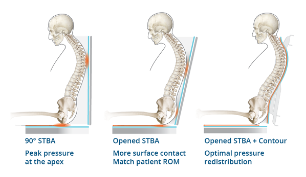 Adjustability STBA