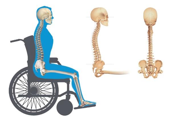 Neutral Pelvic Posture