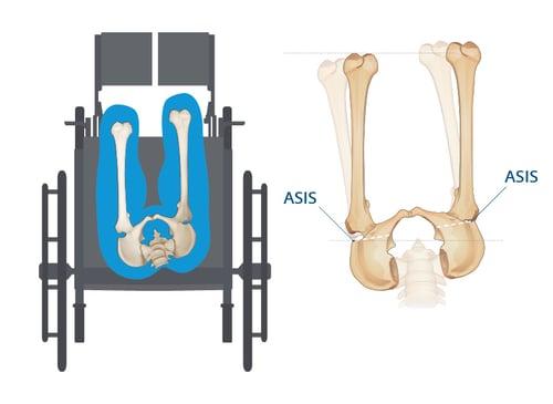 Pelvic Rotation - No Spine