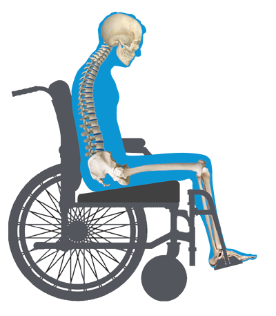 Wedge Wheelchair View