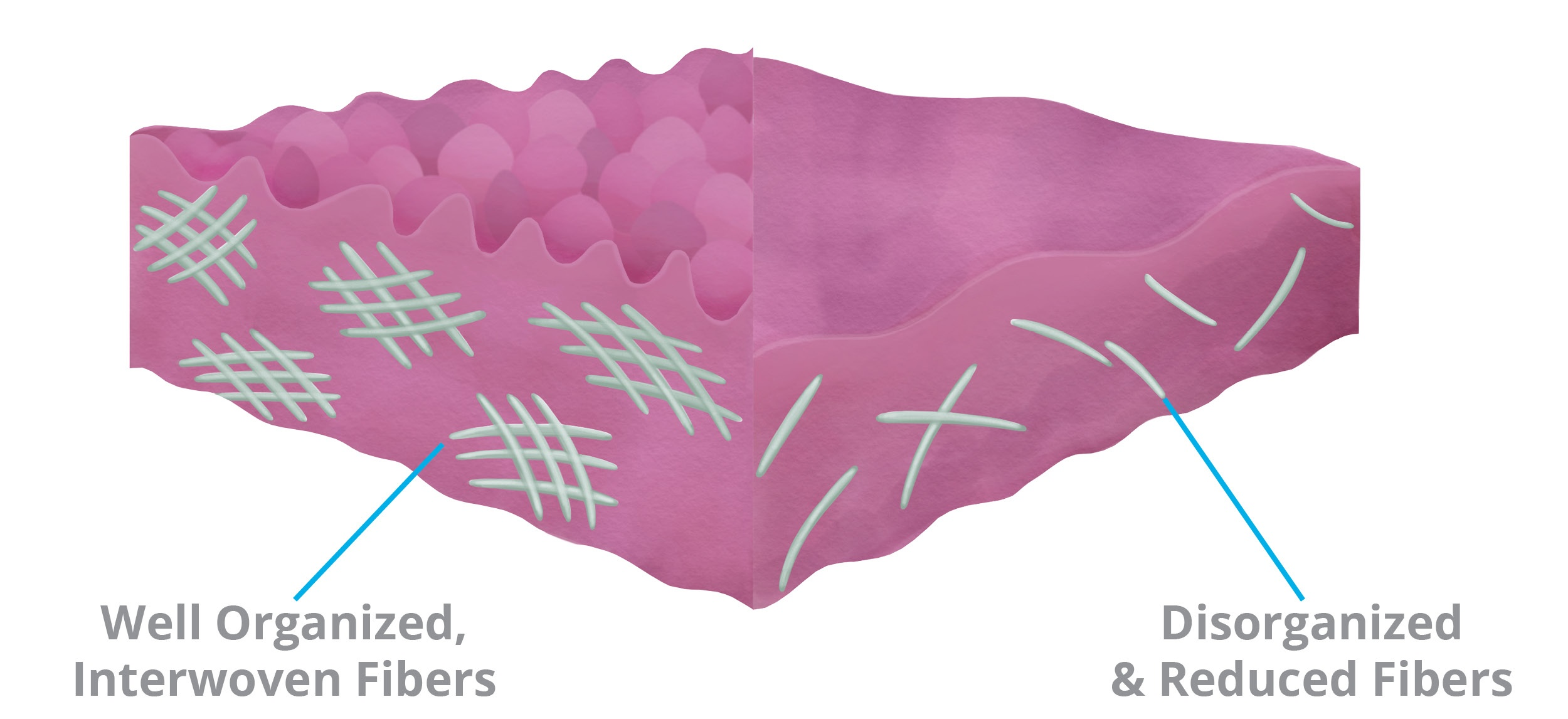Collagen Elastin Fibers