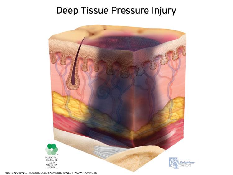 Deep-Tissue-Pressure