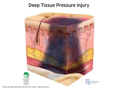 Stages-of-pressure-injuries-Deep-Tissue-Pressure