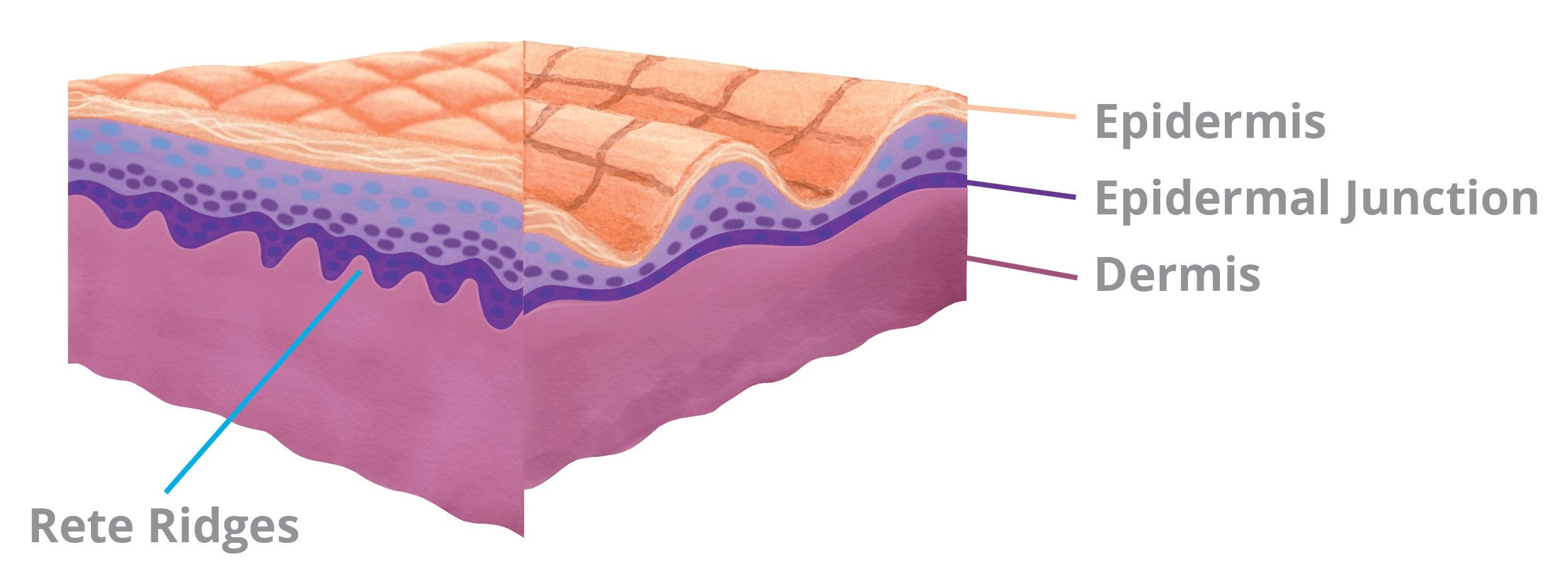 Dermal Epidermal Junction