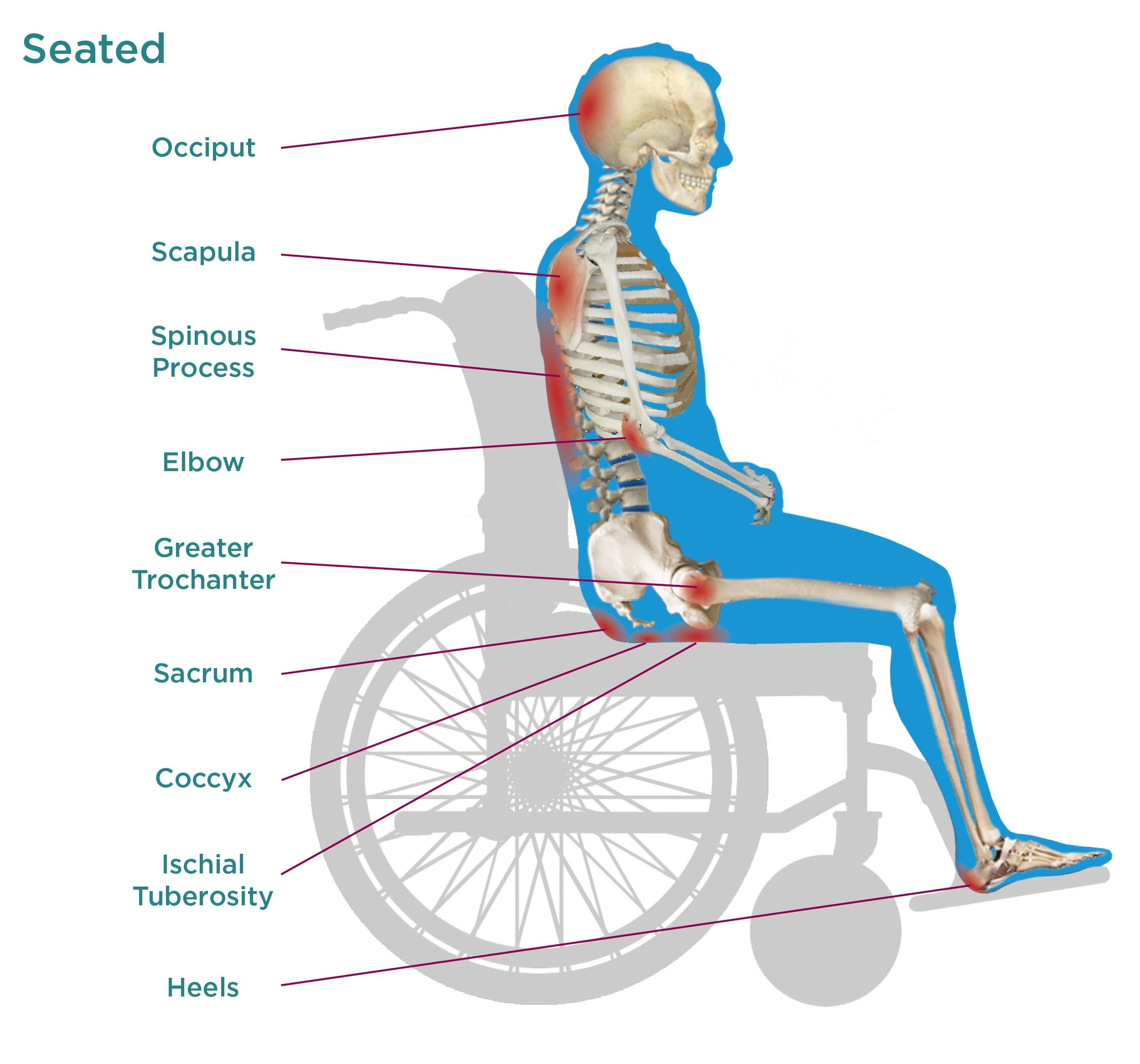 Seated Pressure Injuries
