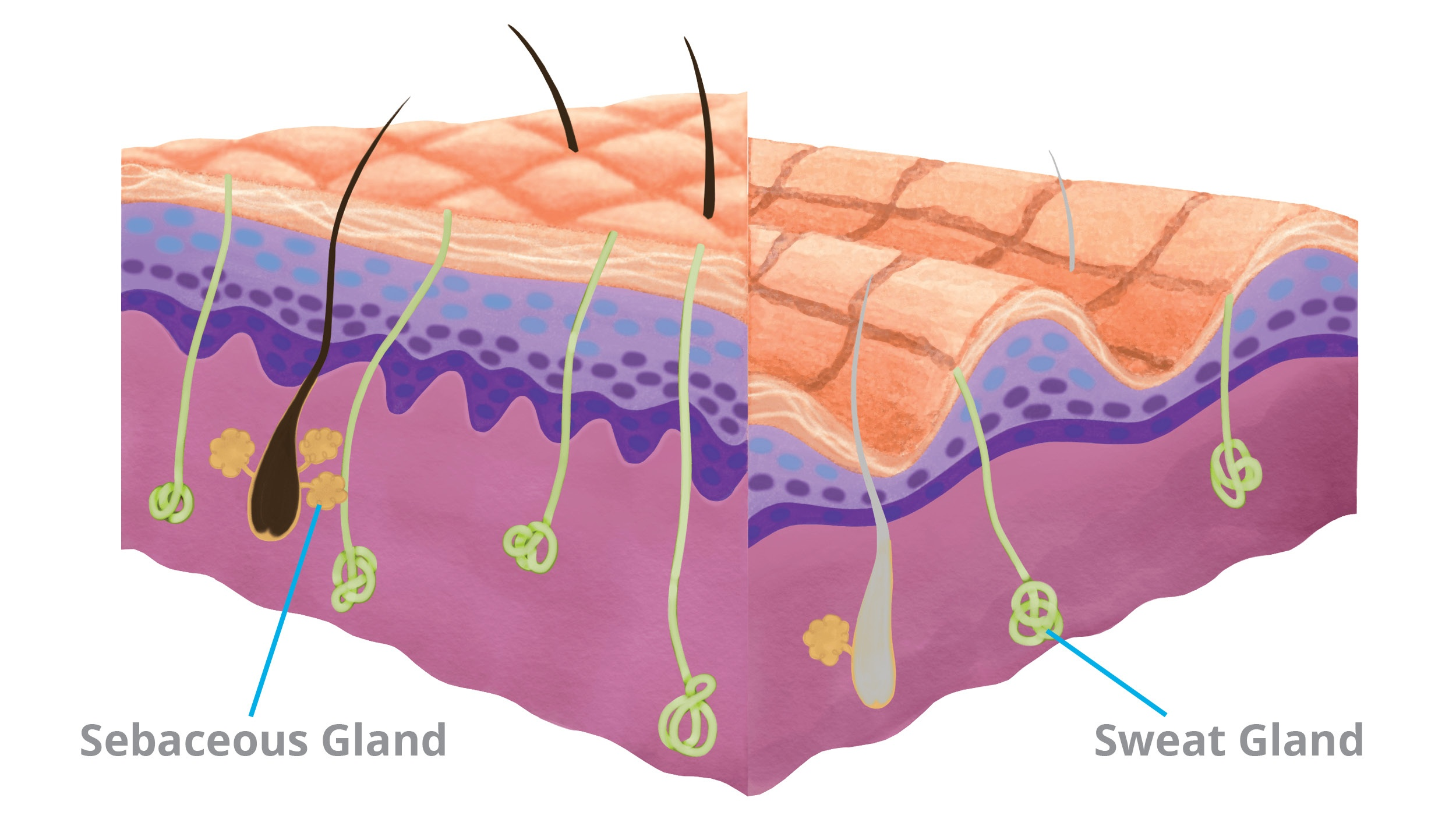 Sebaceous_Glands_wound_development_risk_factors