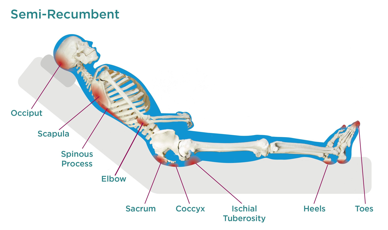 Semi-Recumbent Pressure Injuries