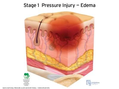 Stages-of-pressure-injuries-Stage-1
