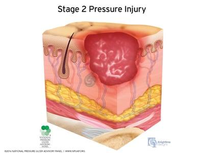 Stages-of-pressure-injuries-Stage-2