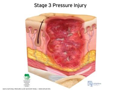 Stages-of-pressure-injuries-Stage-3