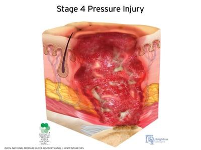 Stages-of-pressure-injuries-Stage-4