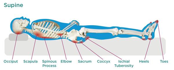 Supine Pressure Injuries