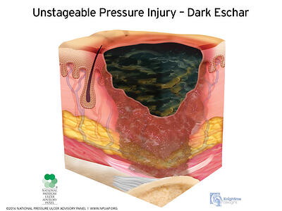 Stages-of-pressure-injuries-Unstageable
