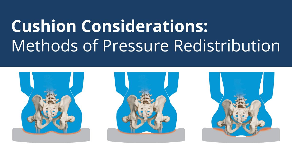 Cushion Considerations: Methods of Pressure Redistribution