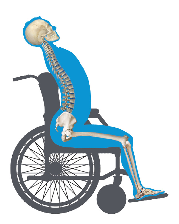 Anterior Pelvic Tilt Wheelchair View