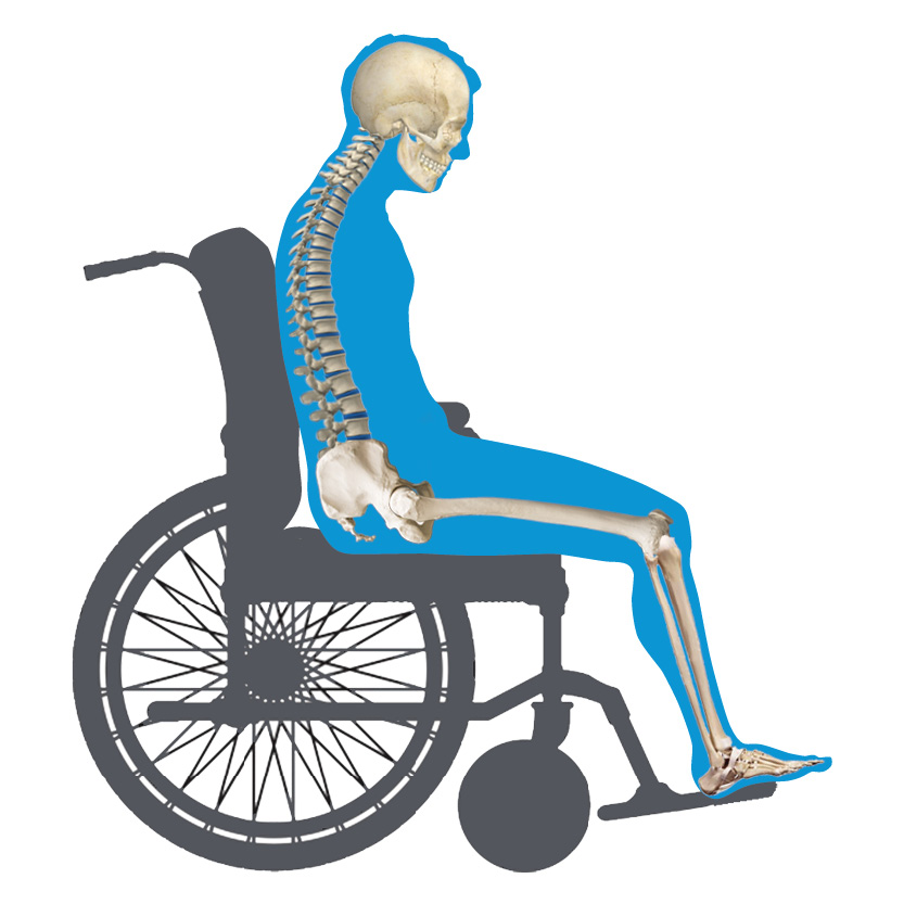 Posterior Pelvic Tilt Wheelchair View